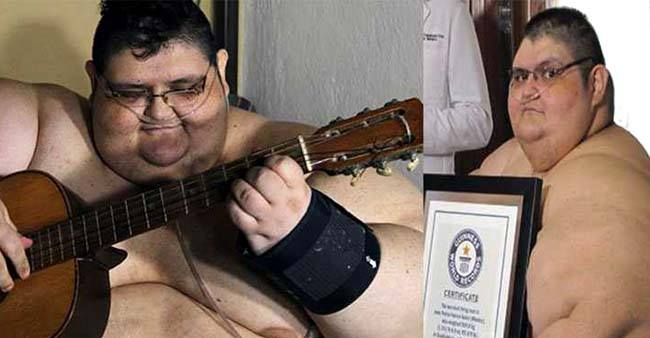 Former World's Heaviest Man Lost 300 Kgs And Lost His Guinness World Record